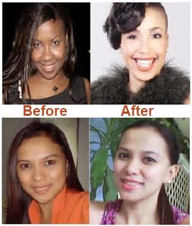 Skin Whitening Forever Does it Really Work
